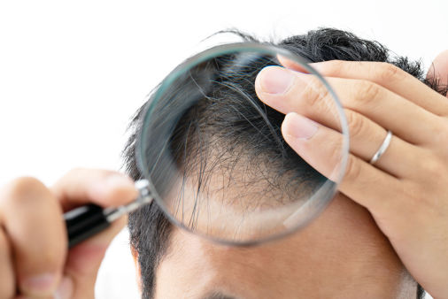 Fight thinning hair with Scalp Optic Hair